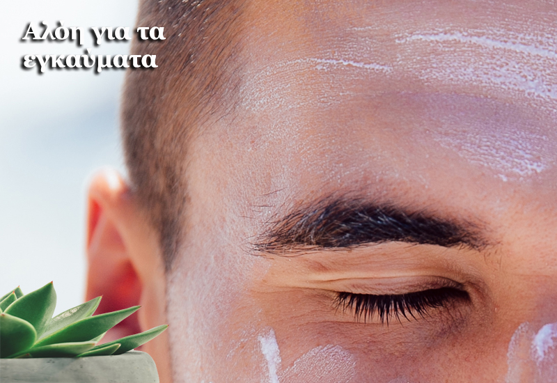 Aloe vera για τα εγκαύματα